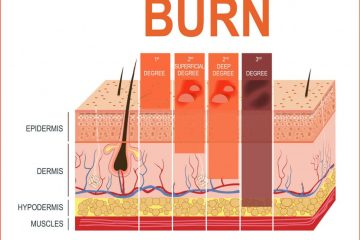 How to treat a burn – How to treat burns at home
