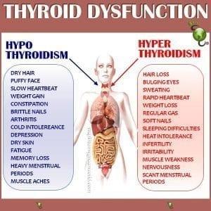 Thyroid Disorder prevention