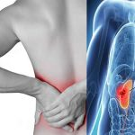 Kidney pain vs. back pain Symptoms