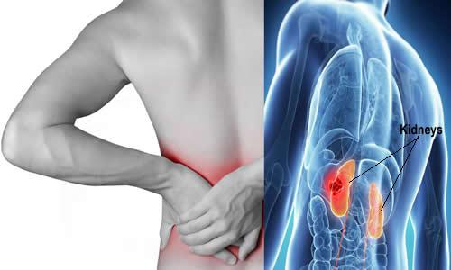 Kidney pain vs. back pain Symptoms