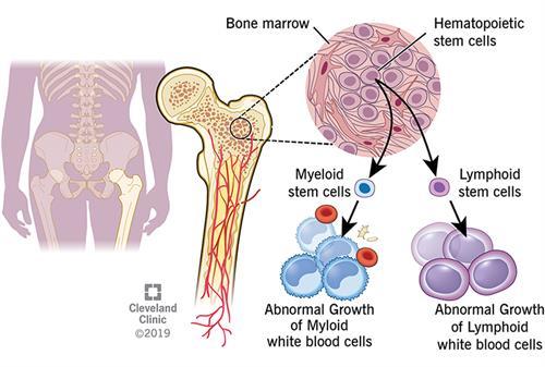 How leukemia forms