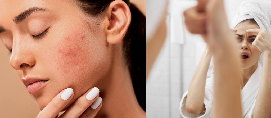 Best Way to Remove Acne Scars