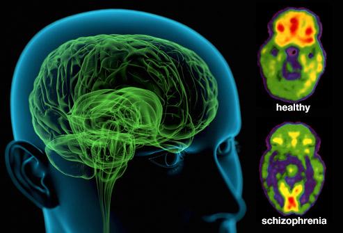 Schizophrenia - Symptoms and causes