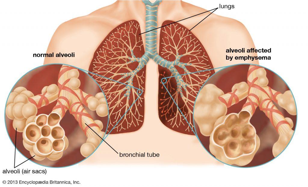 Emphysema-