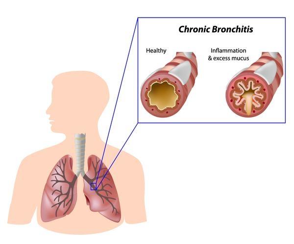 chronic_bronchitis