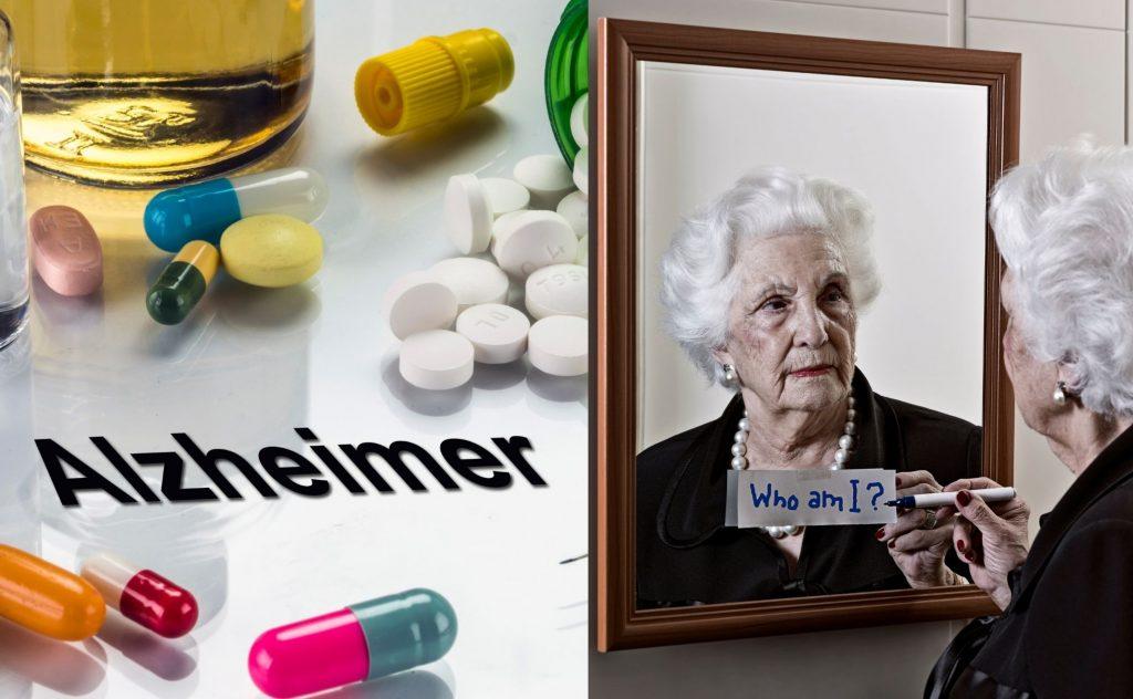 Alzheimer definition
