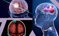 Brain Cancer - Symptoms & Diagnosis