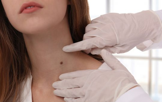 Are Skin Tags Caused By Dehydration?